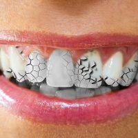 Fisuras dentales