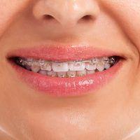 Ortodoncia y mordida correcta