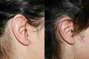 Otoplastia reducción de orejas