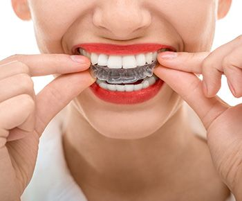 Ortodoncia / Invisalign