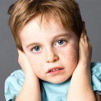 Niños y otoplastia