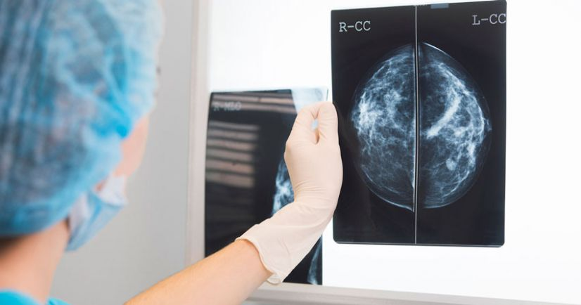 Aumento de mamas y cáncer