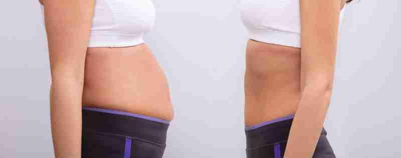 Preguntas frecuentes sobre abdominoplastia