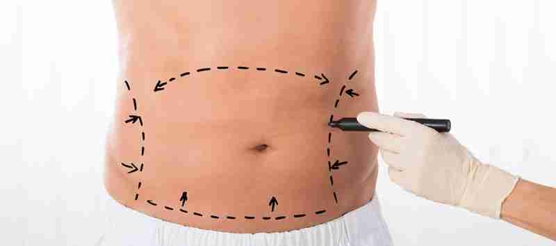 Cómo preparse abdominoplastia