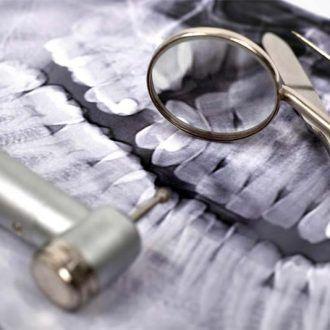 Detección del exceso mandibular