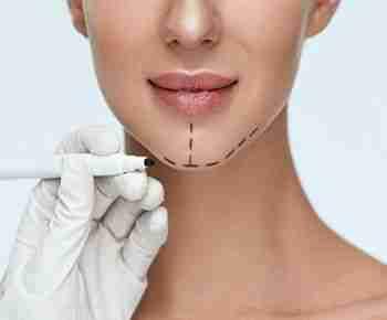 Cirugía Osea facial