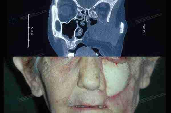 Reconstrucción maxilar antes y después