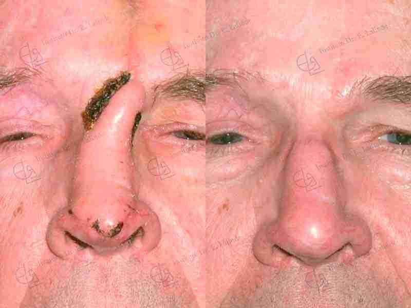 Fotos antes y después reconstrucción nariz