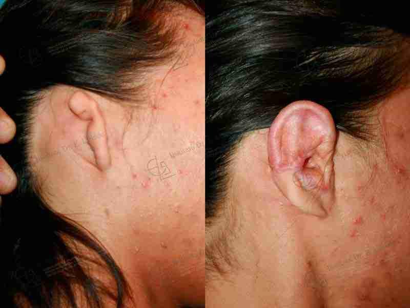 Antes y después de reconstrucción de oreja.