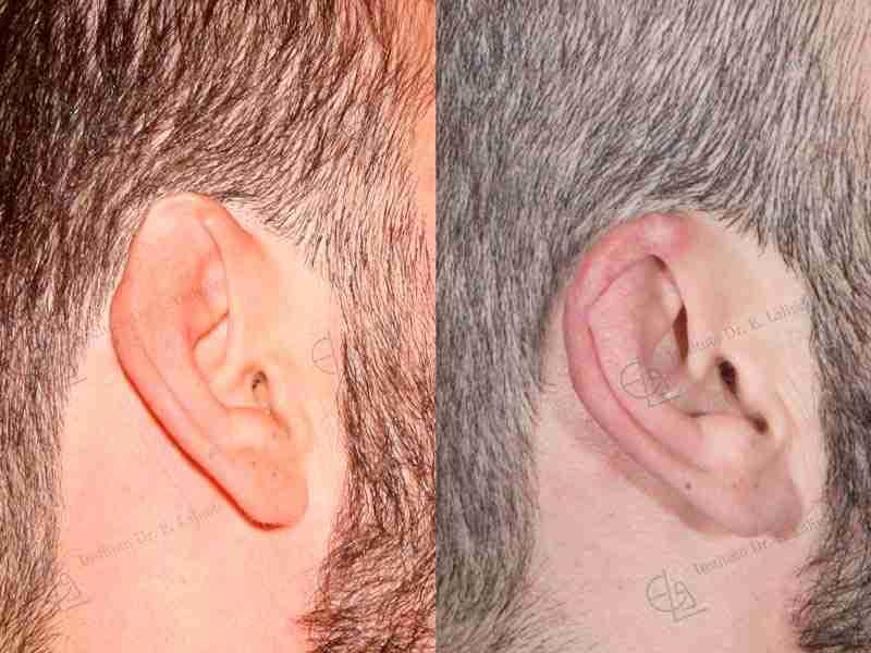 Fotos de reconstrucción de orejas