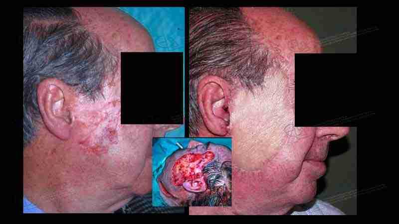 Fotos del antes y después de tumor glándula parótida