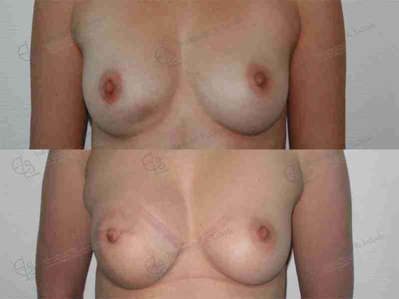 Reconstrucción pezón mastectomía fotos