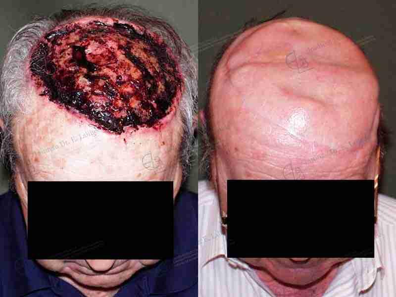 Antes y después de tumor cuero cabelludo