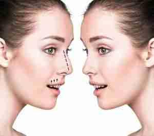 Rinoplastia para reducir la nariz