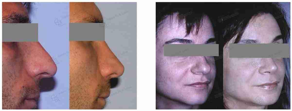 antes y después rinoplastia hombre y mujer