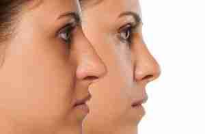 Antes y después de columela colgante