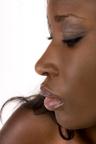 Rinoplastia en mujer de raza negra
