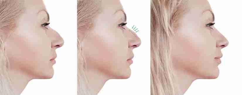Nasal dura punta rinoplastia