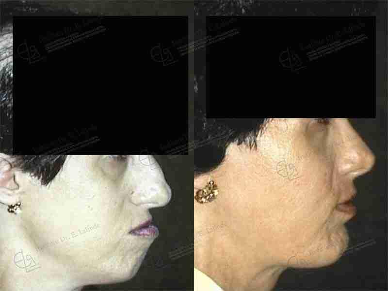Antes y después operación exceso maxilar superior en Madrid