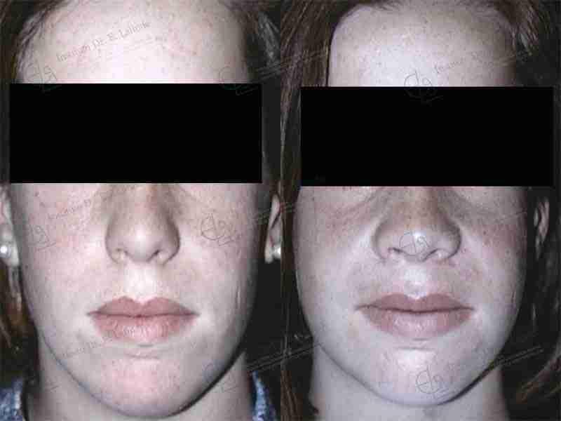 Exceso maxilar antes y después