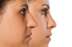Tipos de nariz para rinoplastia