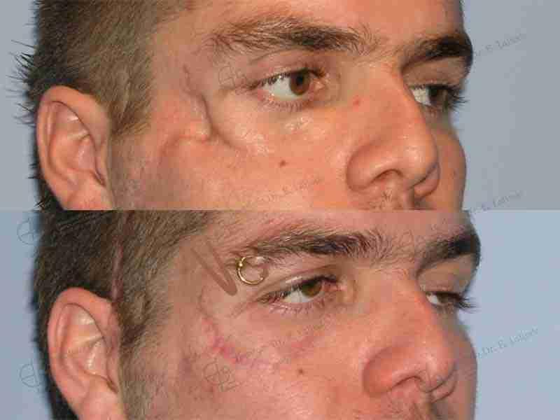 Fotos trauma facial