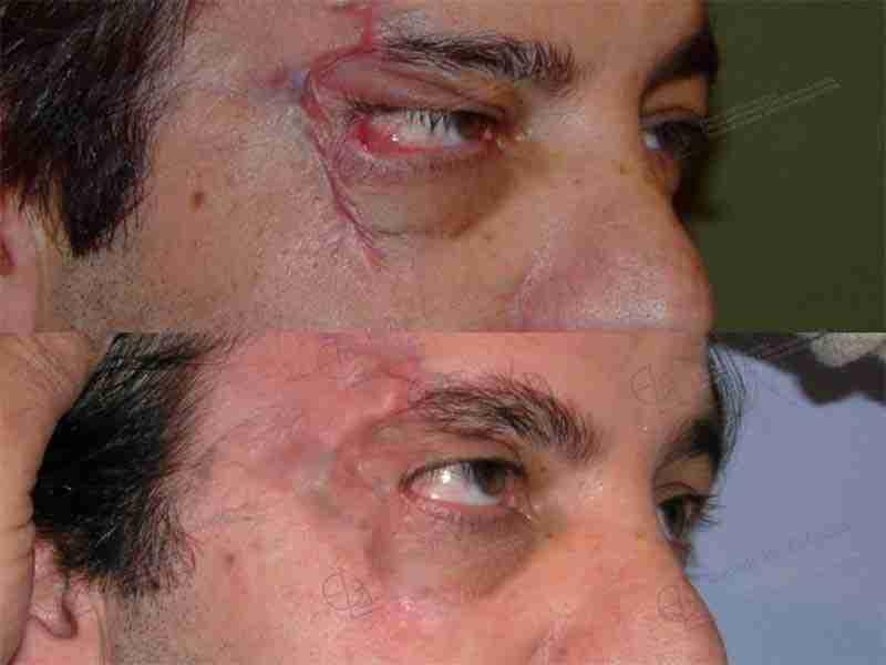Antes y después de un traumatismo facial