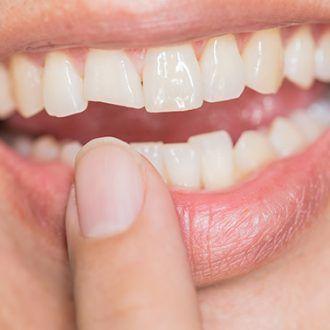 Consecuencias traumatismos dentales