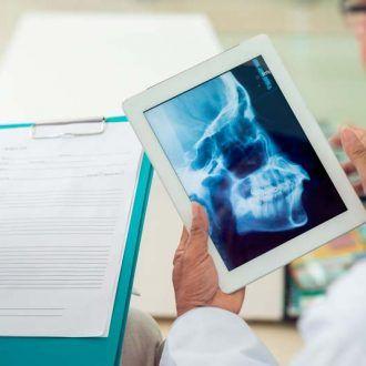 Tumor mandibular