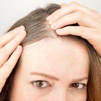 Carcinomas en el cuero cabelludo